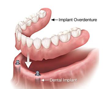 Sunshine Coast Implant Specialists | Bright Smiles Dentistry